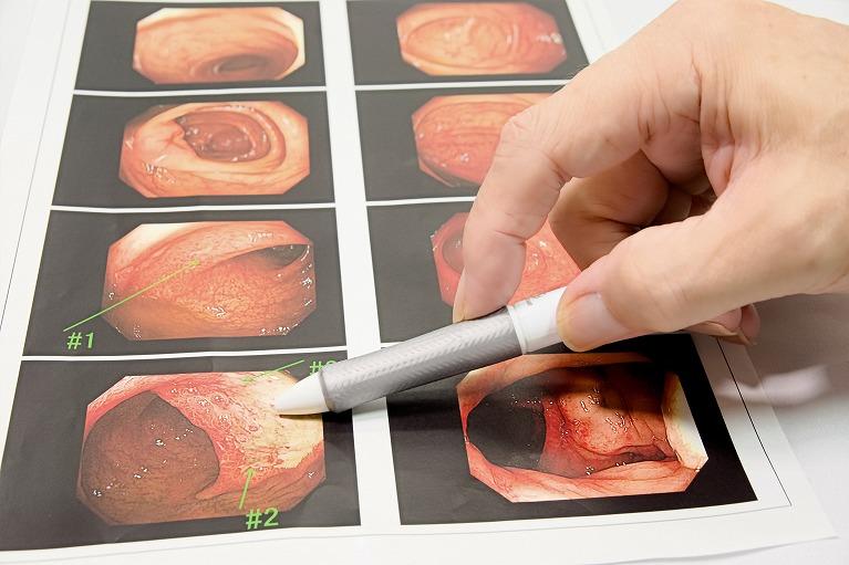 ピロリ菌検査の必要性