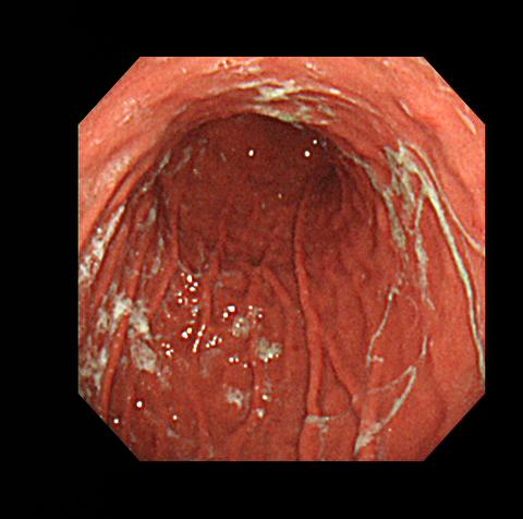 ピロリ菌に感染した胃